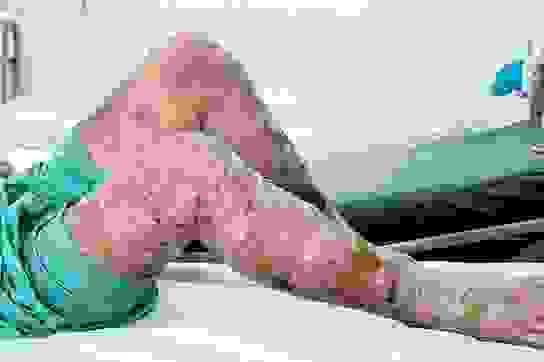 Người mắc bệnh vảy nến đối mặt với nhiều rối loạn chuyển hóa