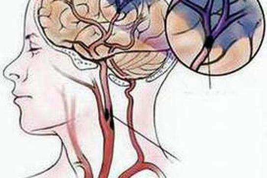 Cảnh giác đột quỵ ở người bệnh tiểu đường, huyết áp, rung nhĩ