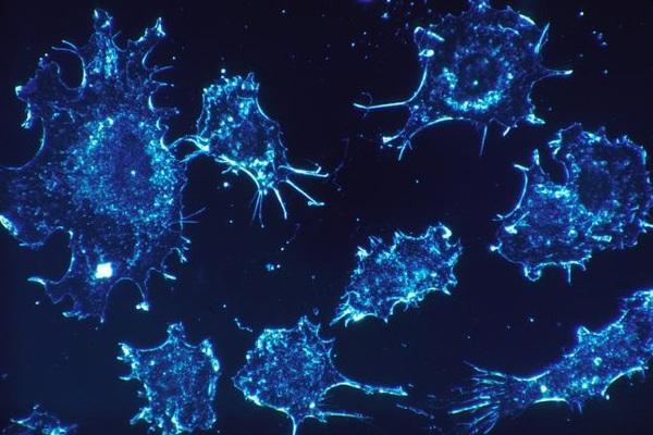 Di căn ung thư xảy ra như thế nào?