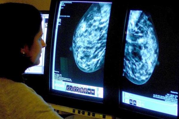 Ung thư vú có thể quay trở lại sau 20 năm