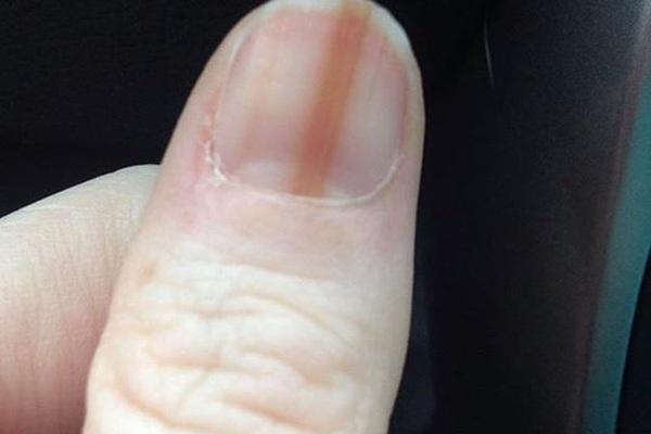 Nếu thấy dấu hiệu này ở móng tay, cần đi kiểm tra ung thư ngay