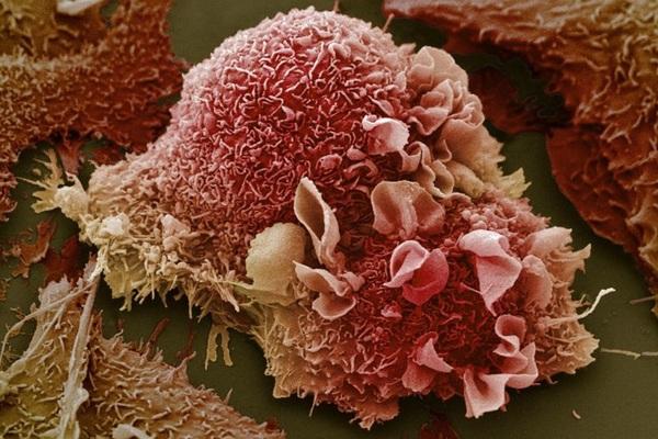 Khoa học phát hiện phương pháp điều trị ung thư mới