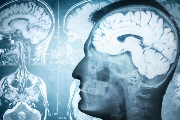 Tiêu diệt tế bào zombie mở ra triển vọng chữa trị chứng lo âu