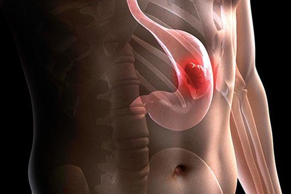 Nguyên nhân ung thư dạ dày đứng thứ 3 tại Việt Nam