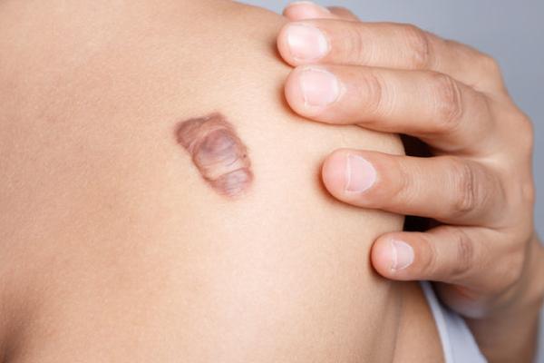 """Tự bảo vệ mình khỏi ung thư da với """"cẩm nang vàng"""" từ bác sĩ"""