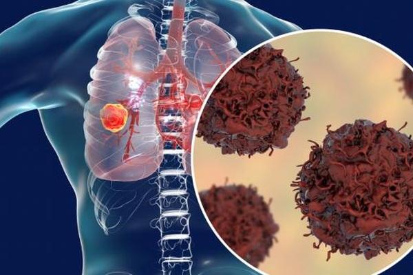 """Để ung thư phổi không còn là """"sát thủ"""" thầm lặng"""