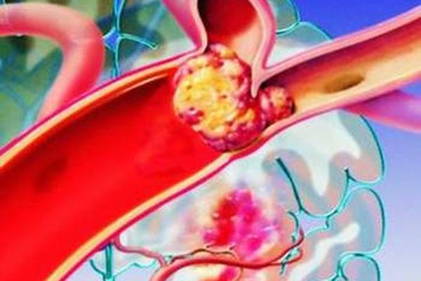 Thuyên tắc huyết khối tĩnh mạch, biến chứng nguy hiểm trên bệnh nhân ung thư
