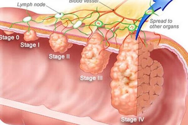3 phương pháp phát hiện sớm ung thư đại trực tràng