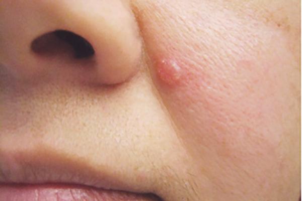 Có những dấu hiệu bất thường này bạn nên nghĩ đến ung thư da