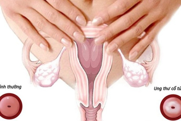 Ung thư cổ tử cung điều trị như thế nào