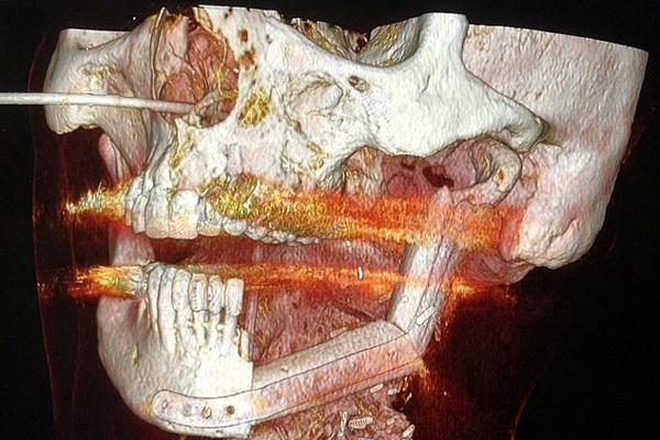 Xạ trị ung thư vòm họng, bệnh nhân tan nửa hàm răng