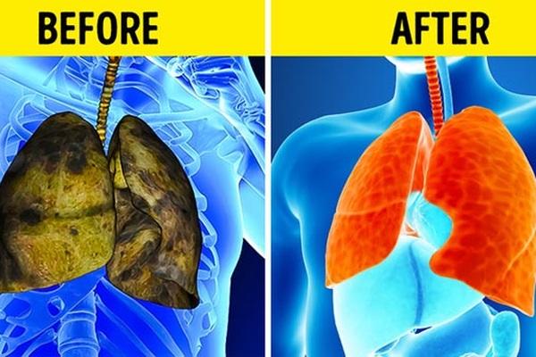 5 triệu chứng ung thư phổi nhiều người không hề hay biết