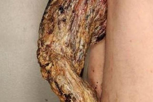 """Người đàn ông """"mọc sừng"""" dài 14 cm trên lưng vì…ung thư da"""