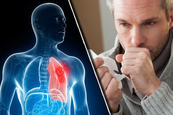 Hút thuốc lá- nguyên nhân chính gây ung thư phổi