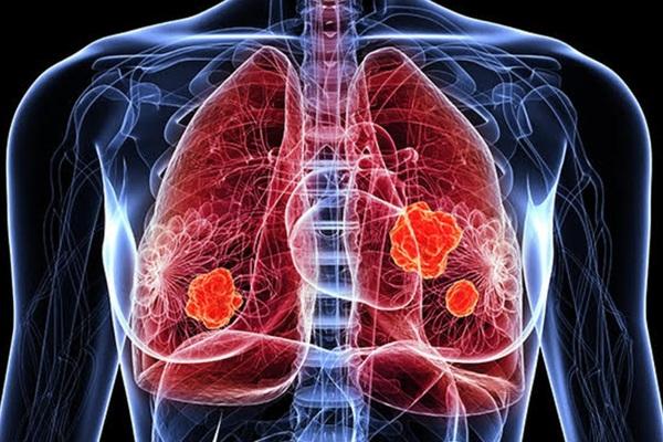 Loại ung thư nào khiến bệnh nhân dễ tử vong nhất khi mắc Covid-19?