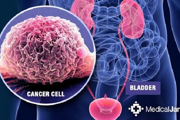 Phát hiện mới về mối liên quan giữa ung thư bàng quang và hút thuốc lá