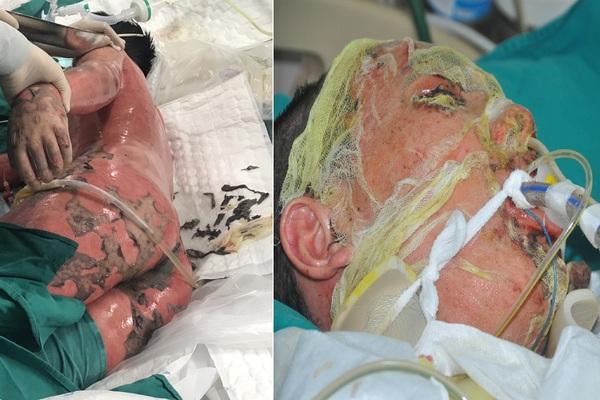 Bác sĩ kêu gọi khẩn cấp cứu tính mạng chàng trai dị ứng người đỏ rực