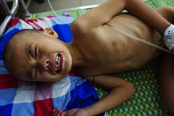 Nhói lòng nhìn cậu bé 5 tuổi sưng tấy tinh hoàn yếu ớt cầu xin sự sống