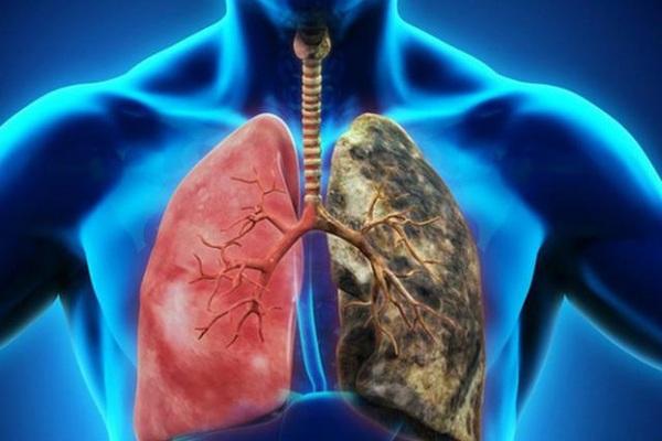 Những dấu hiệu sớm của ung thư phổi cần biết