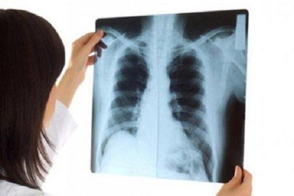Người phụ nữ ung thư phổi di căn dù chỉ có dấu hiệu khó thở, tức ngực