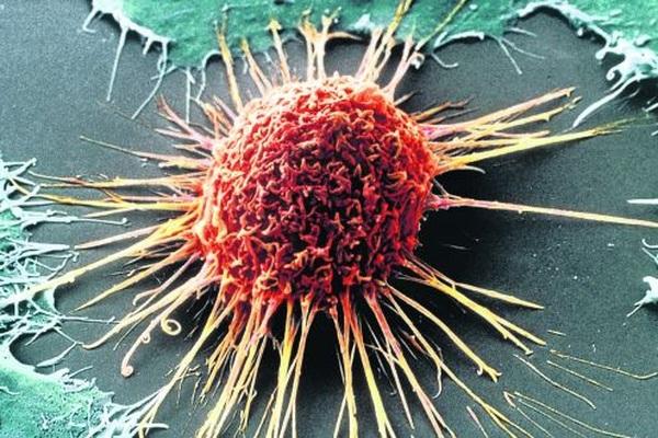 """Tiêu diệt tế bào ung thư bằng cách khiến chúng…""""ăn thịt"""" chính mình"""