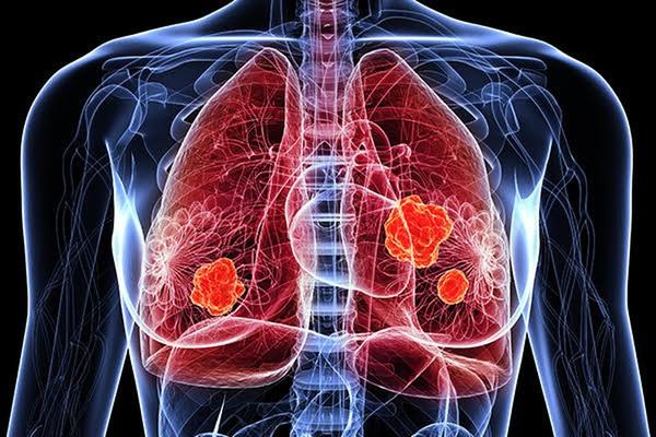 Điều trị ung thư phổi bằng phương pháp ghép phân tử hóa trị
