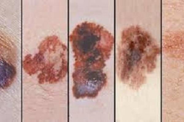Phát triển miếng dán điều trị ung thư da