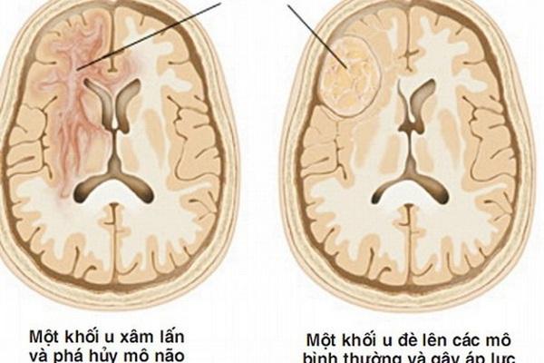 Dấu hiệu cảnh báo u não