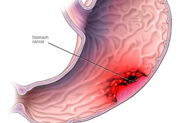 Tầm soát ung thư dạ dày như thế nào?