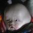 Quặn lòng trước bé 6 tháng tuổi đầu to dị thường