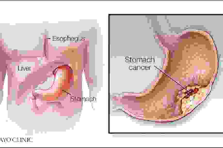 Có 5 dấu hiệu này bạn nên nghĩ đến ung thư dạ dày