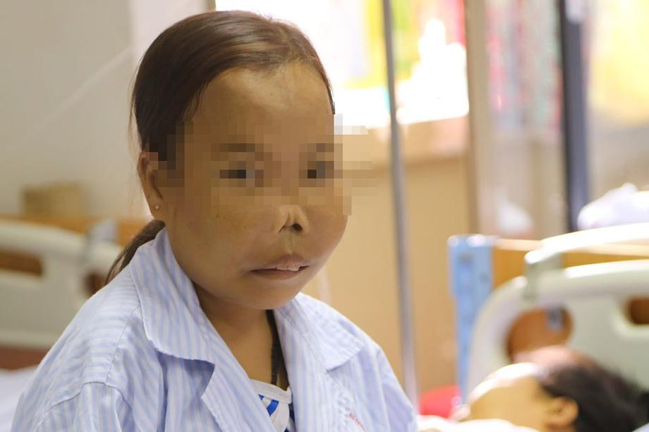 Căn bệnh khủng khiếp khiến những đứa trẻ bị biến dạng về hình hài