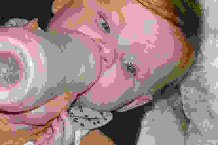 Tình cờ phát hiện ung thư ở bé 5 tháng tuổi qua ảnh chụp