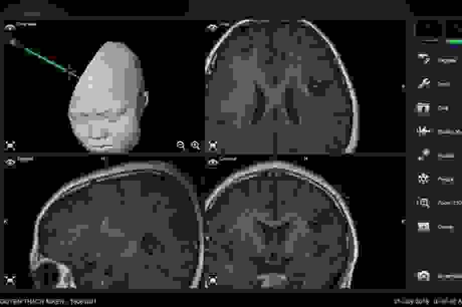 U não ở trẻ em: 70% là ác tính, dấu hiệu nào cảnh báo nguy cơ?