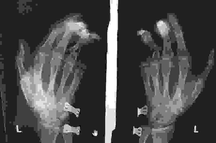 Điện thoại phát nổ khi đang sạc pin, thanh niên bị dập nát bàn tay