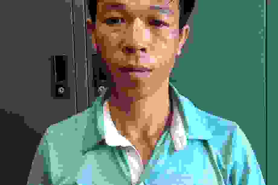 Hà Nội: Tên trộm 6 tiền án gây ra hàng loạt vụ trộm điện thoại ở bệnh viện