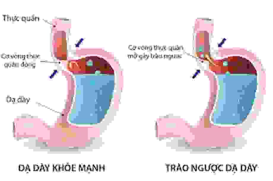 Trào ngược dạ dày thực quản có thể dẫn đến ung thư?