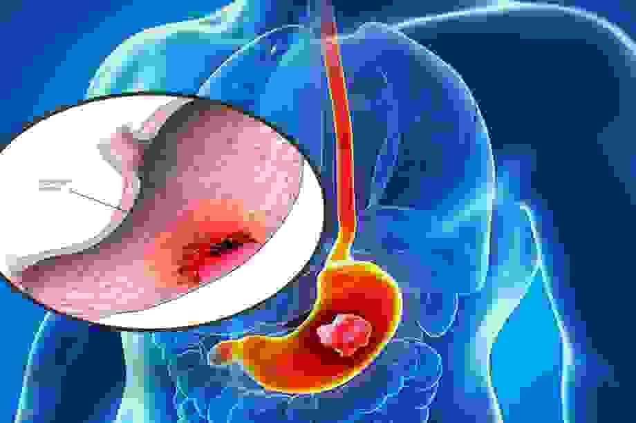 Chỉ số CA 19-9 tăng cao có phải đã mắc ung thư tụy?