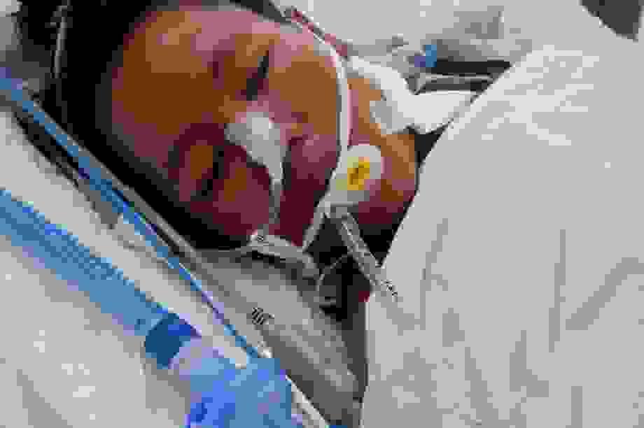 Tính mạng mong manh của người phụ nữ tảo hôn, 17 tuổi đã lên chức mẹ
