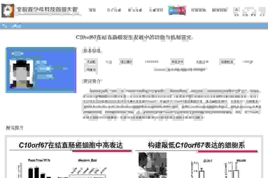 """Trung Quốc phanh phui vụ """"thần đồng"""" tiểu học nghiên cứu ung thư"""