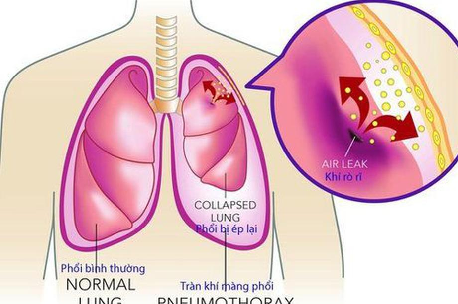 Tràn dịch màng phổi - biến chứng của nhiều bệnh