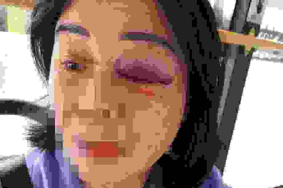 Nhắc mở nhạc nhỏ, nữ tiếp viên xe buýt bị hành khách đánh bầm mắt