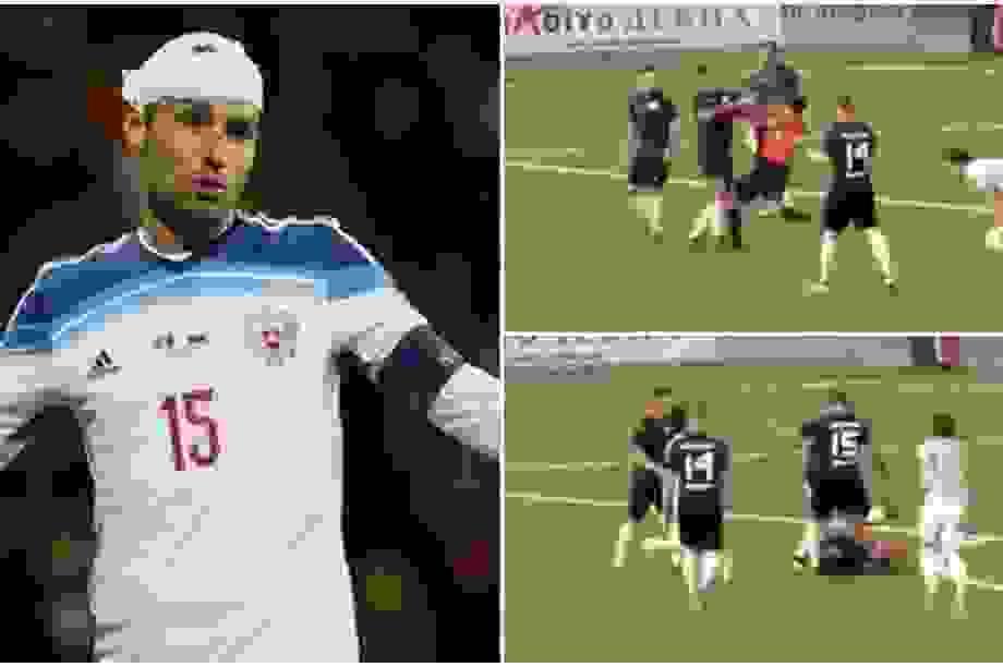 Cựu tuyển thủ Nga đấm thẳng mặt trọng tài sau khi nhận thẻ đỏ