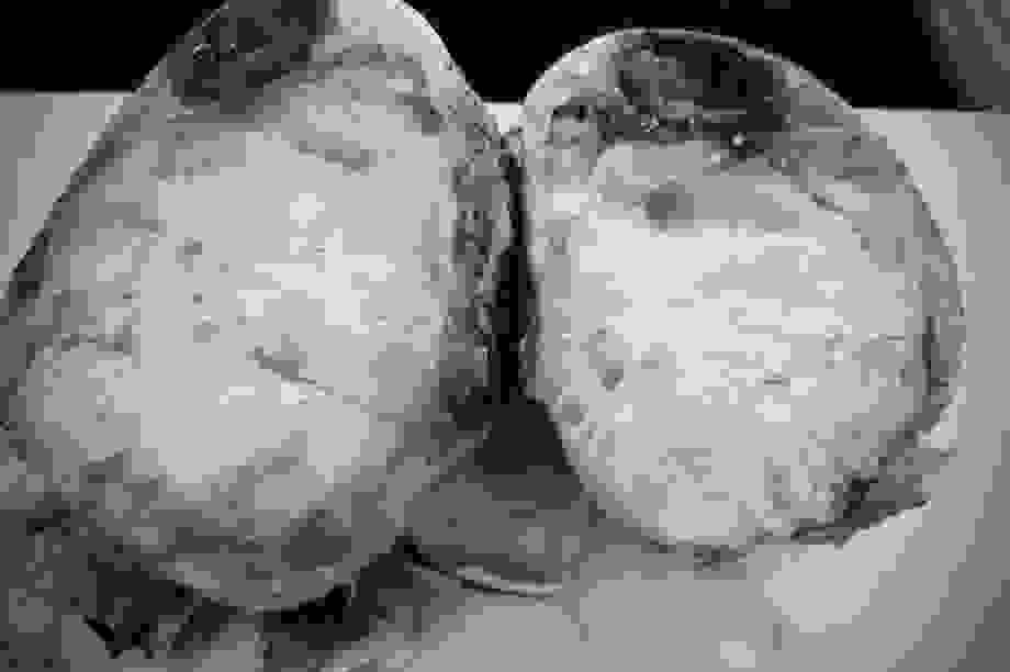 Bất ngờ phát hiện khối u nặng 3 kg trước ngực, sau nhiều ngày khó thở